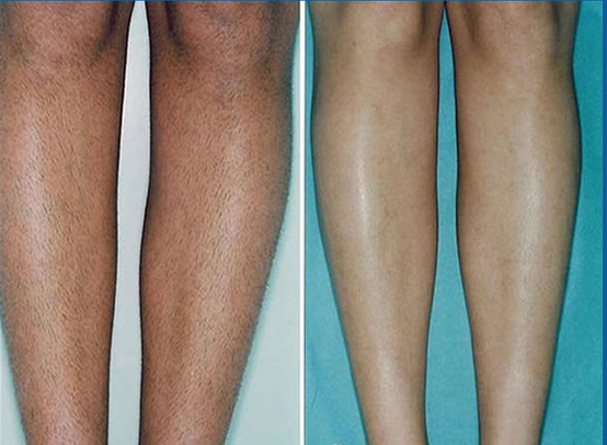 Before and After of a mans legs